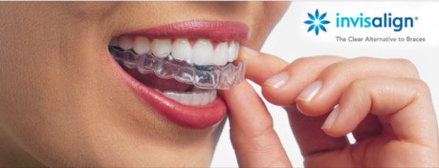 dm_il-dentista-moderno_invisalign_sorriso_allign-technology-640x246