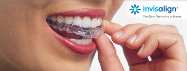 dm_il-dentista-moderno_invisalign_sorriso_allign-technology-640x246
