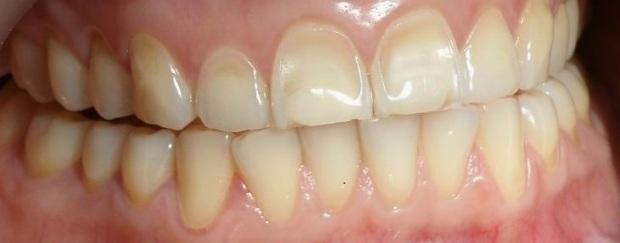 Estogeny & nekarioznye porazenia zubob. Monografia.