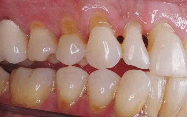 cura-abrasioni-dentali-napoli-caserta-31ci08flbgjzi5tpjj6l8g