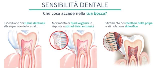 sensibilita-dentale-e-sbiancamento